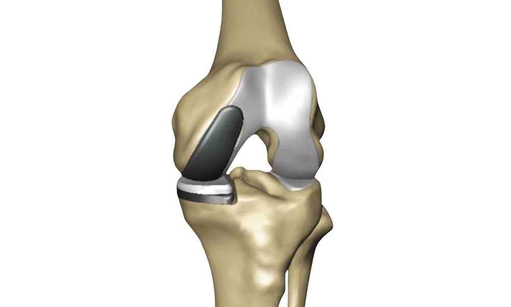 Digital model of a total knee replacement
