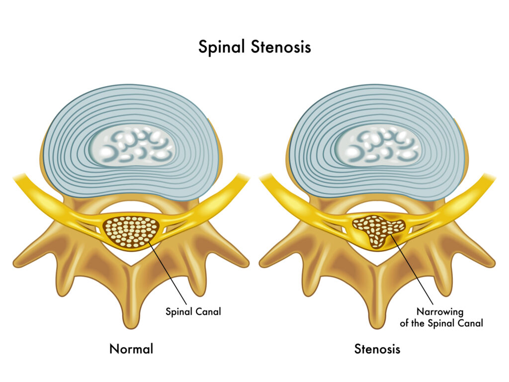 Dr. Ed Becker breaks down the frequently asked question: What is Spinal Stenosis?