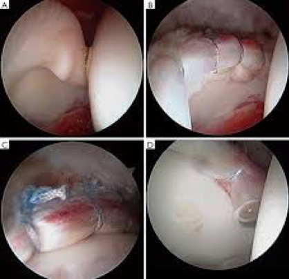 Labral tear and repair via hip arthroscopy