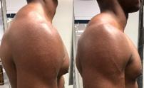 Forward Shoulder Posture