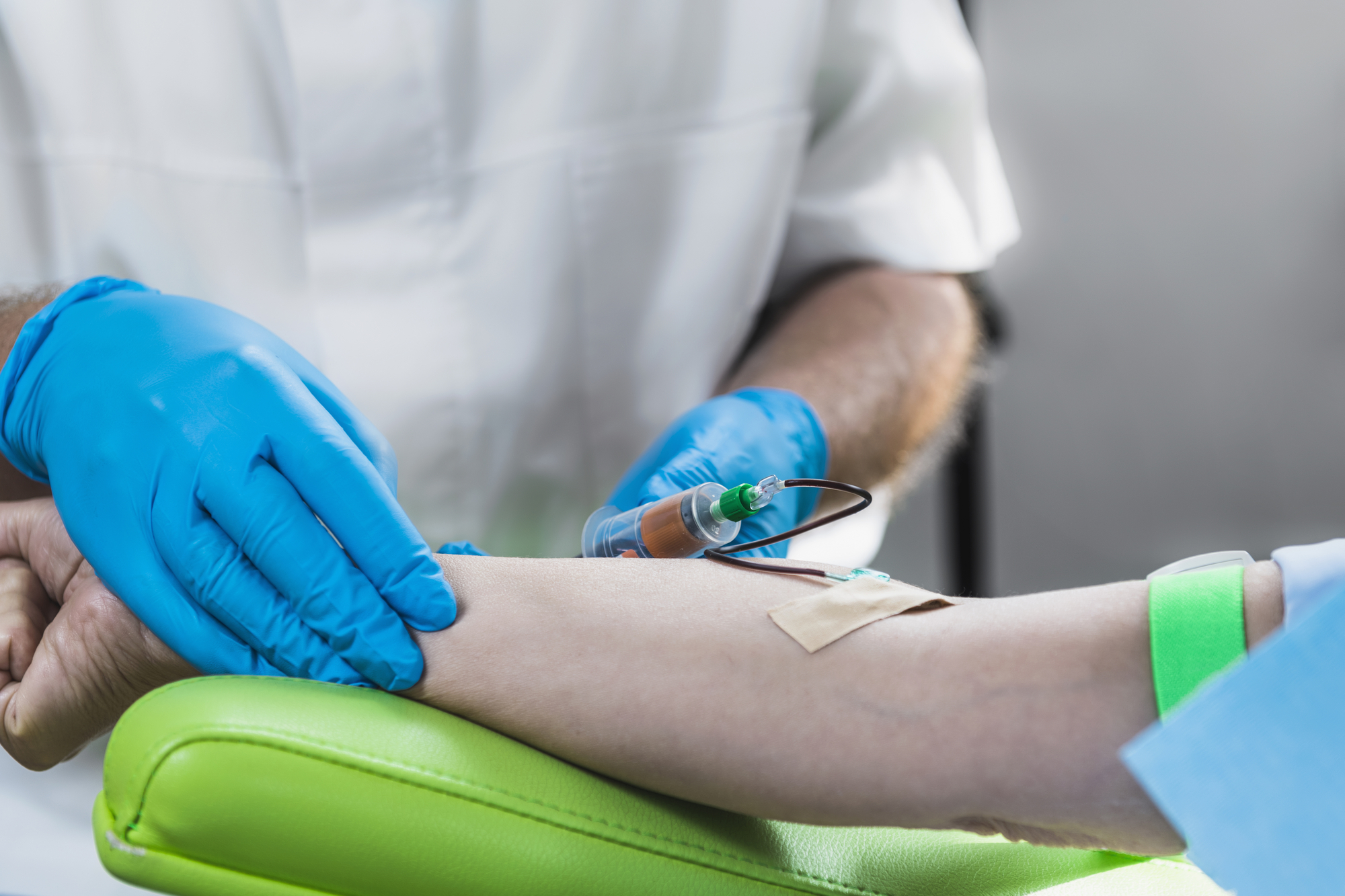 Administering platelet-rich plasma therapy